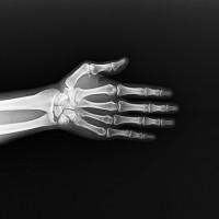 手提式X光机售后服务,手提式X光机维修,保养,翻新